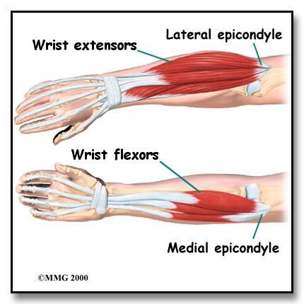 Wrist Pain In Gymnastics: Understanding Contributing Factors and