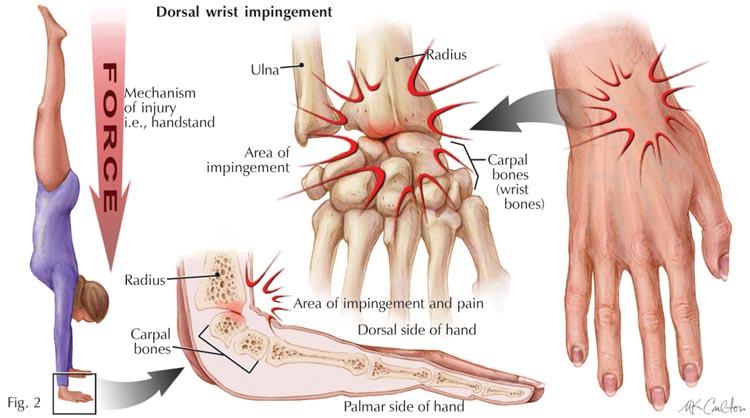 Wrist Pain In Gymnastics Understanding Contributing Factors And